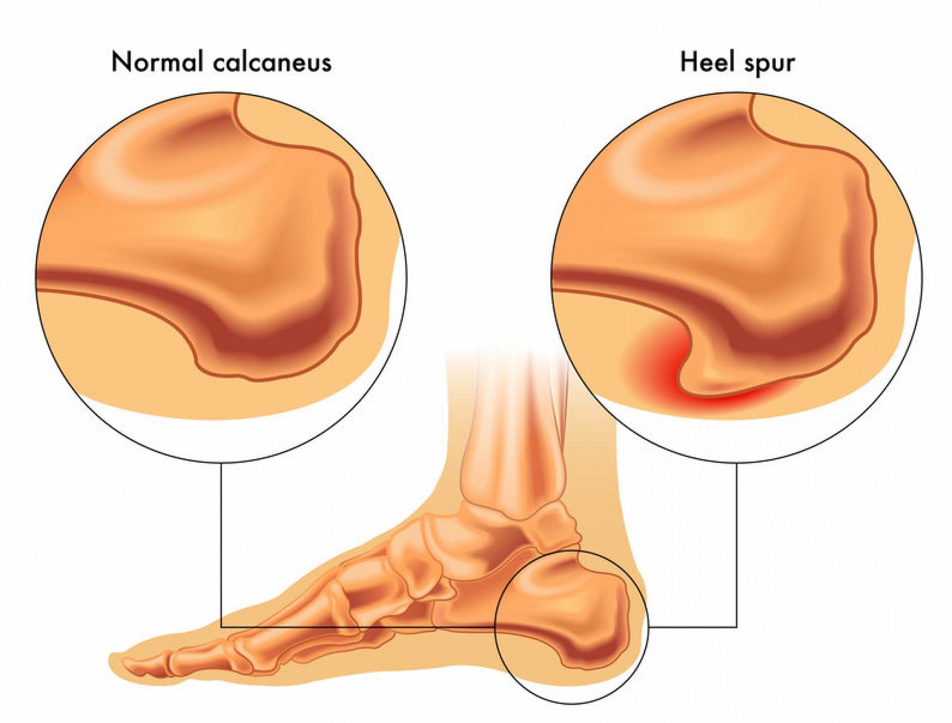 Ízületi fájdalom a lábban futás után A lábfájás okai - fájdalom a láb